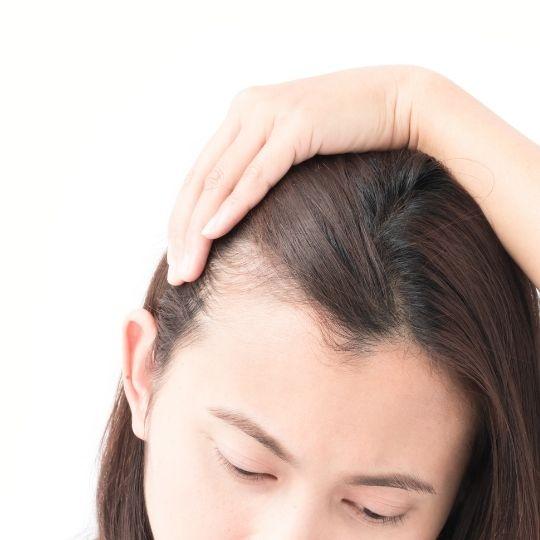 Hair Loss After birth